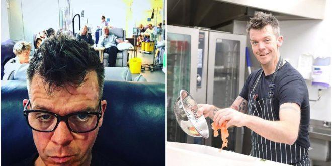 """(ФОТО) РАКОТ НА КОЖА НЕ Е ШЕГА – На познат ТВ готвач му дијагностицирале четврти стадиум на рак:""""Имам уште 12. месеци живот"""""""