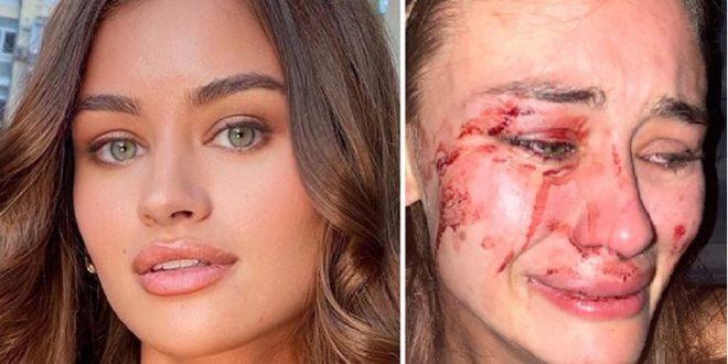 """(ФОТО) ИСКУСТВА ОД ОДМОР ВО ТУРЦИЈА – Убавата манекенка објавила фотографија со крваво лице:""""Не сакам да молчам, не претепаа!"""""""