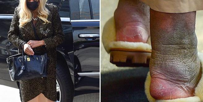 (ФОТО) Славна водителка е болна од неизлечива болест: Зглобовите и позеленеле!