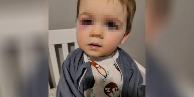 МЗ: Дете (2) од згрижувачко семејство, изгладнето и дехидрирано, со долга историја на болести, не ја издржало битката за живот и покрај напорите на лекарите!