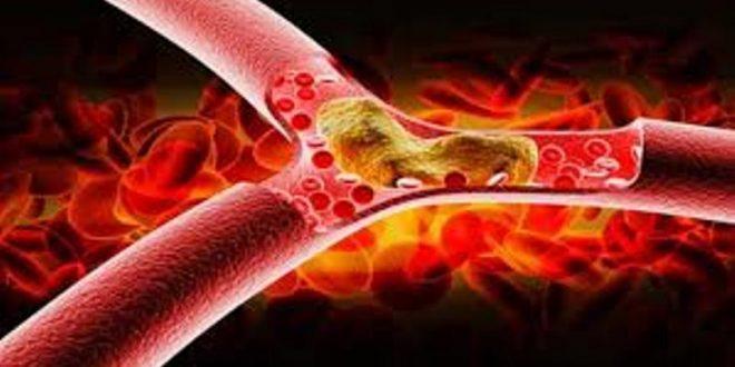 Еве кои намирници помогнуваат да се намали холестеролот!