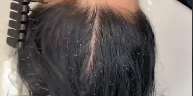 (ВИДЕО) Косата и била полна со ПРВУТ, а потоа земала ГАЗИРАН СОК! Ќе останете без текст колку е ефикасно!